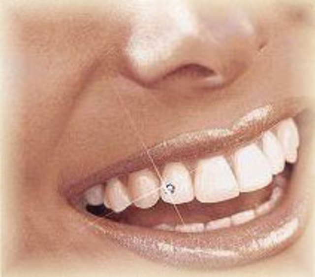 tooth-jewelry-2