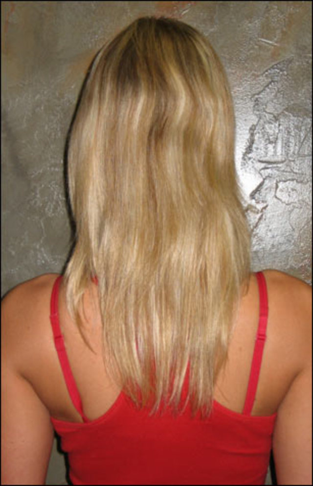 Before Individual Extensions